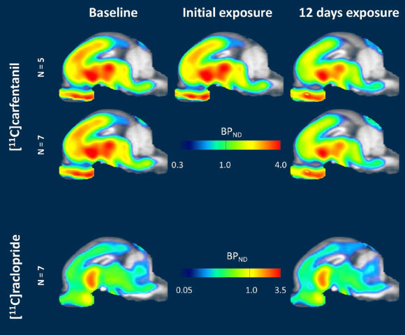Brain neurotransmitter heat map Foody Body bioinformatics